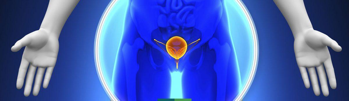 doencas-hiperplasia-prostatica-benigna-hpb-dr-cristiano-gomes-urologista-em-sao-paulo